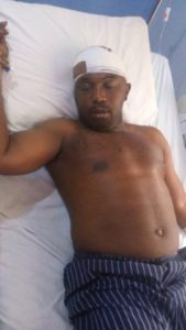 Tochukwu Onyeabuchi on hospital bed after the acid and machete attack